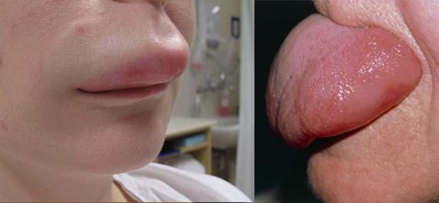 Ангионевротический отек на губе и языке