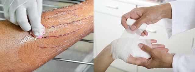 Обработка руки от царапин кота в травмпункте
