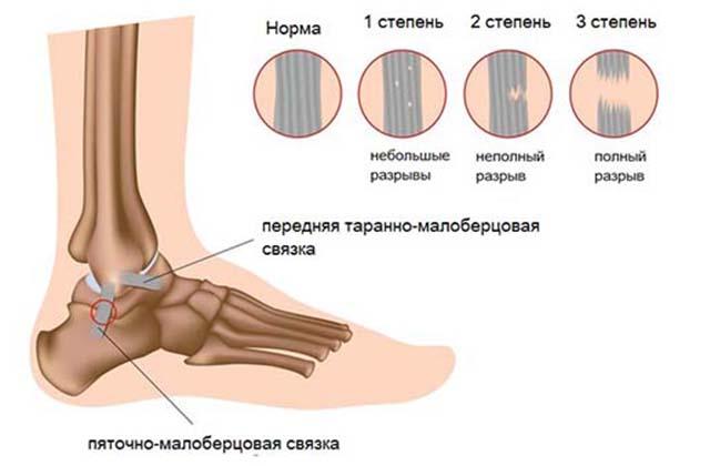 Травма лодыжки