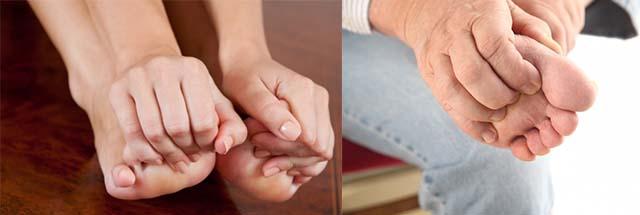 Зуд ножних коннечностей