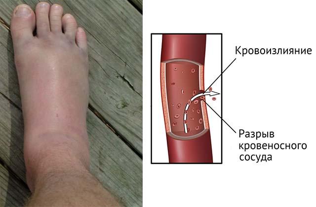 Кровоизлияние после инсульта
