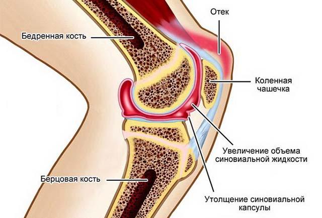 Схема воспаления сустава на ноге