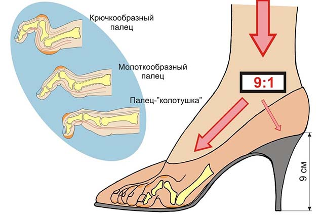 Вред от каблуков
