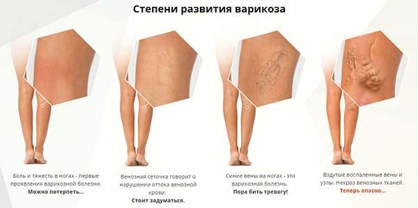 Степени развития варикоза
