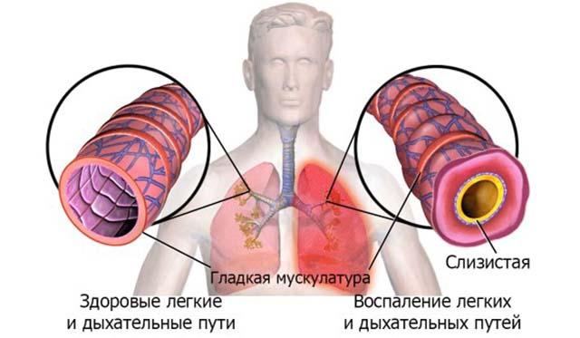 Схема дыхательных путей