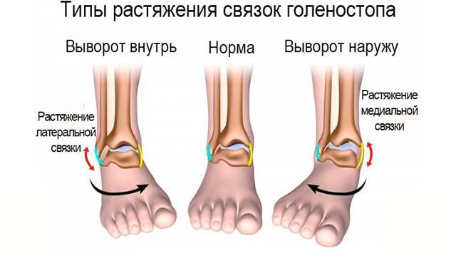 Изображение - Боль в области сустава голеностопного припухлость лечить Bez-imeni-3-3