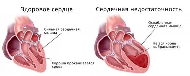 Изображение здорового и больного сердца