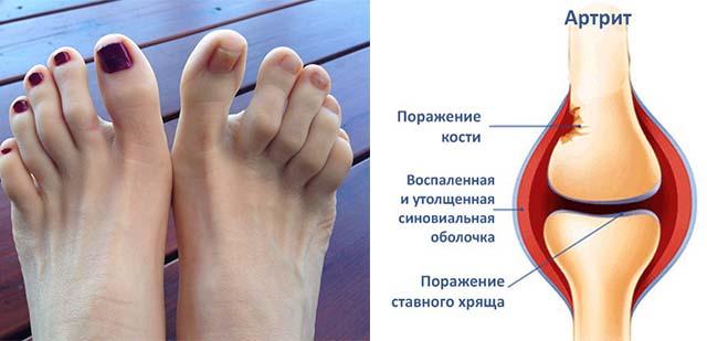 Схема развития артрита