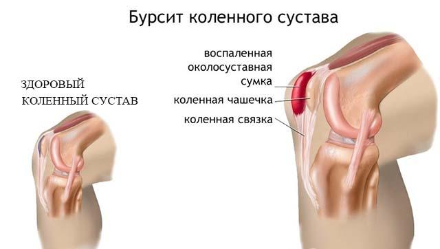 Схема бурсита сустава