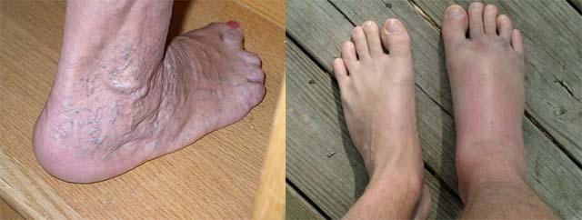 Вены и опухоль ног