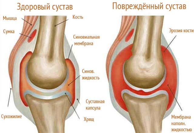 Здоровый и поврежденный сустав