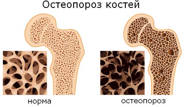 Схема костей с остеопорозом