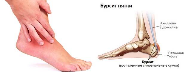 Изображение - Боль в области сустава голеностопного припухлость лечить Bez-imeni-6-3