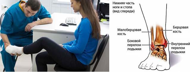 Изображение - Боль в области сустава голеностопного припухлость лечить Bez-imeni-7-3