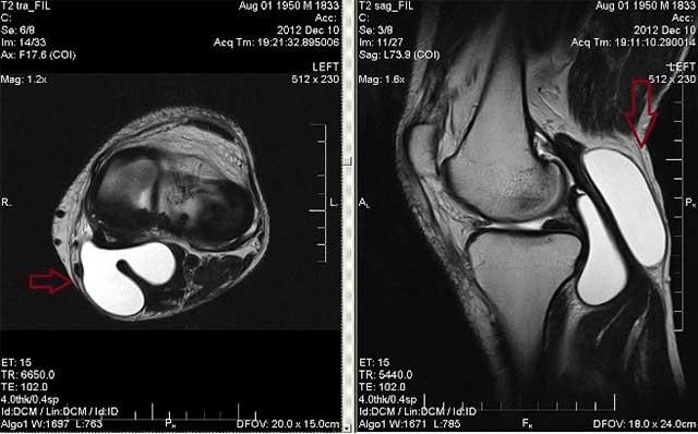Компьютерная томография колена