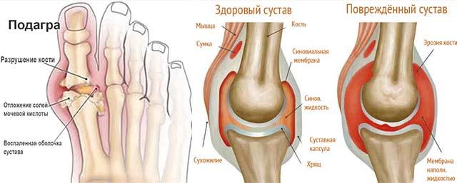 Подагра большого пальца и коленного сустава