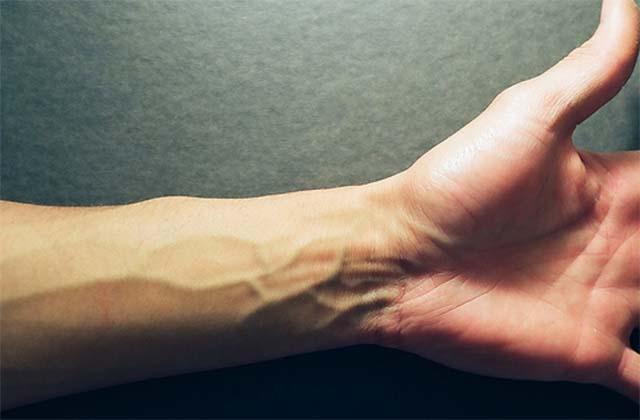 Вены на мужской руке