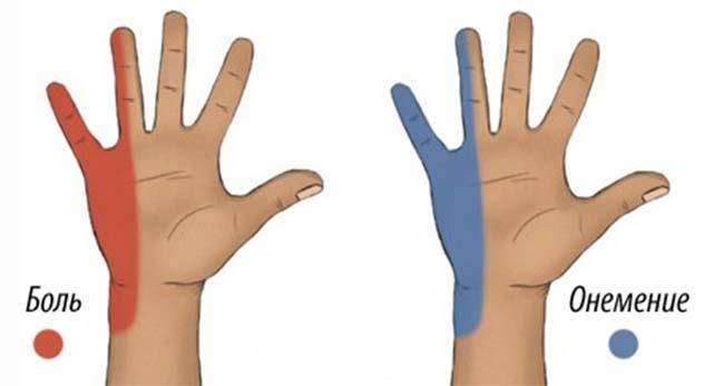 Онемение пальцев на ладони