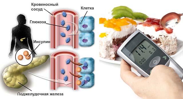 Сахарный диабет и сладкое