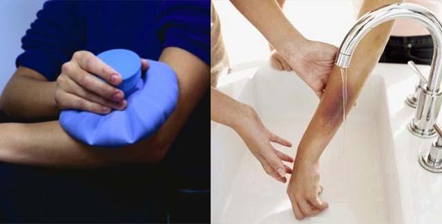 Изображение - Синяки на суставах пальцев рук без причины Bez-imeni-10-6