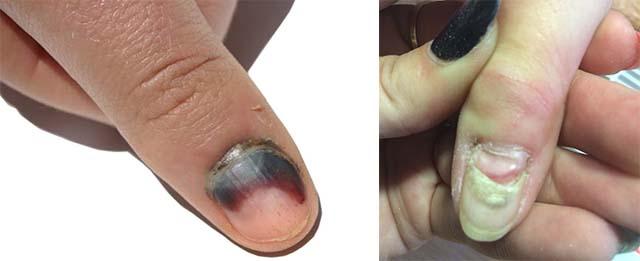 Гематома под ногтем пальца
