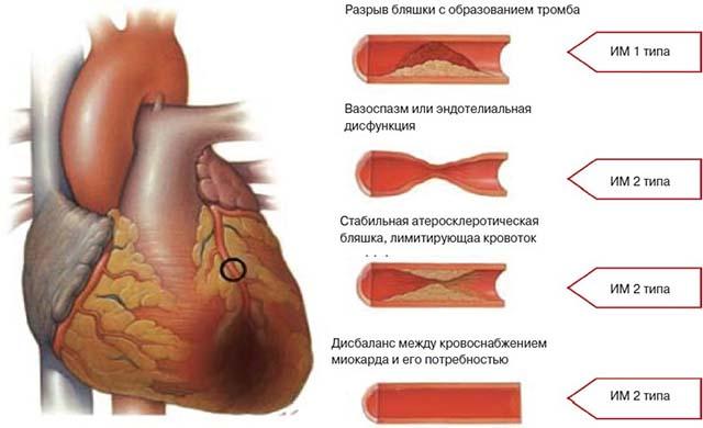 Сердечная недостаточность ИМ