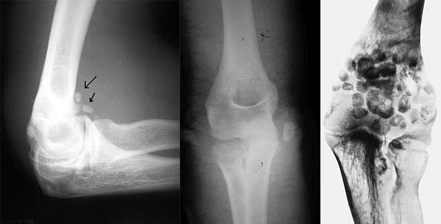 Рентгенограмма при хондроматозе