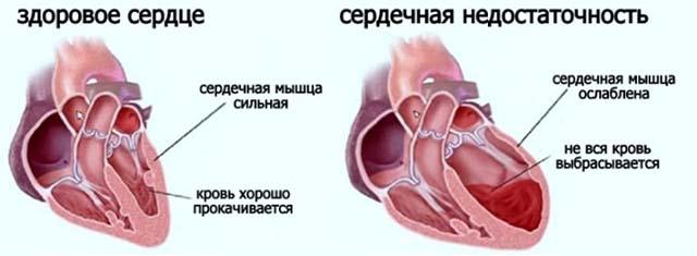 Сердечно сосудистая недостаточность и здоровое сердце