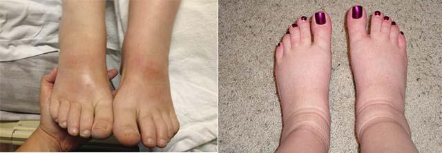 Сильно отекшие ноги у женщин