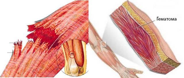 Изображение - Синяки на суставах пальцев рук без причины Bez-imeni-2-7