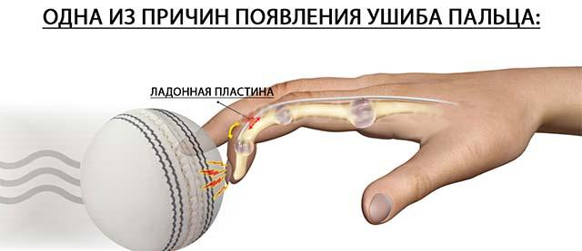 Ушиб об теннисный мяч
