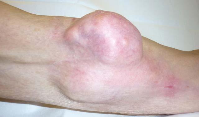 Злокачественная опухоль локтя
