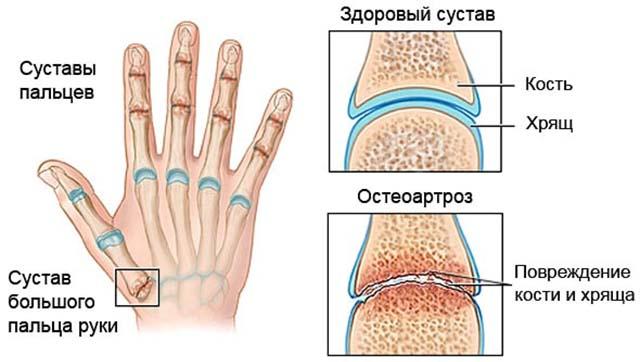Остеоартроз сустава рук