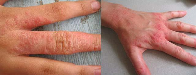 Аллергическая сыпь на верхних конечностях