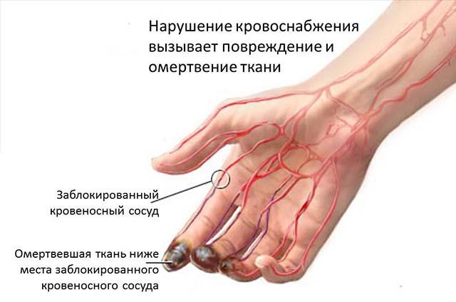 Схема воздействия тромба