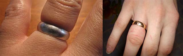 Опухший палец с кольцом на руке