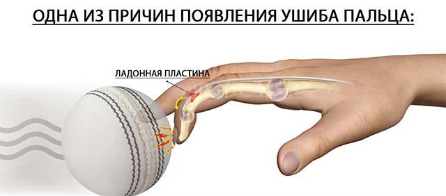 Удар пальца о мяч
