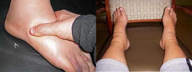 Нажатие на ногу и следы от обуви