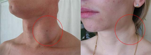 Лимфогранулематоз на шее