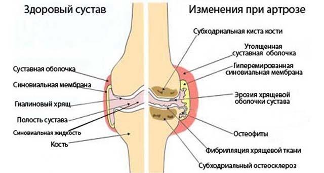 Здоровый и больной сустав при артрозе