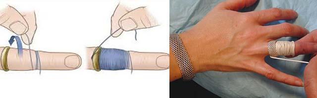 Способ снять кольцо с пальца с помощью нитки и иголки