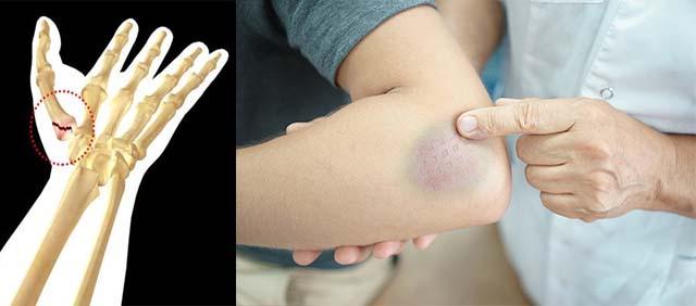 Синяк на локте и перелом пальца
