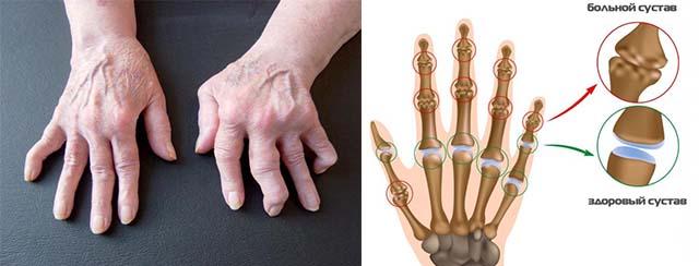 Больные и отекшие суставы