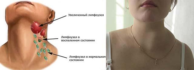 Лимфатические узлы на шеи
