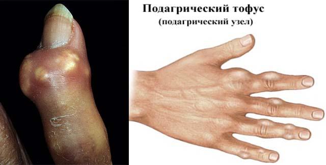 Подагра на пальце руки
