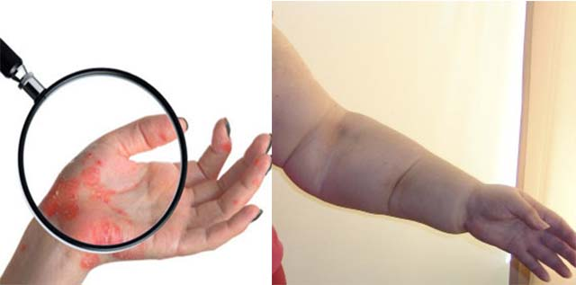 Лимфостаз руки и рожистое воспаление