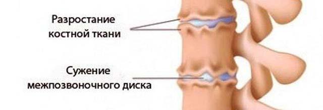Заболевания позвоночника
