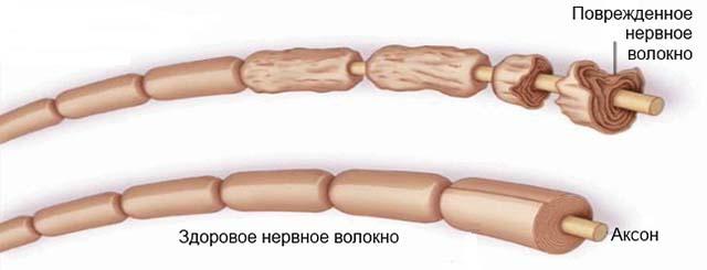 Нервное волокно при синдроме Гийена Барре
