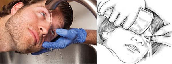 Промывка глаза водой