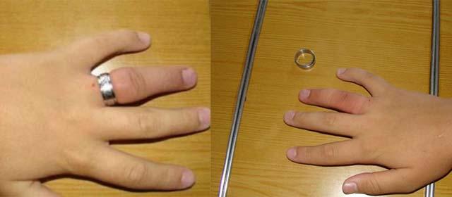 Отек пальца после снятия кольца